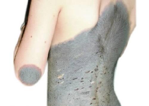 عجیبترین ماهگرفتگیهای بدن انسان! (تصاویر)