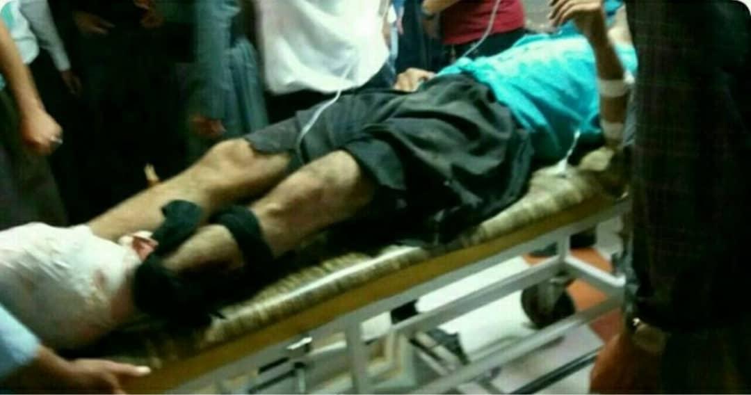 قربانیان مین همچنان در انتظار حمایت/ بنیاد شهید حقوق این افراد را وتو میکند