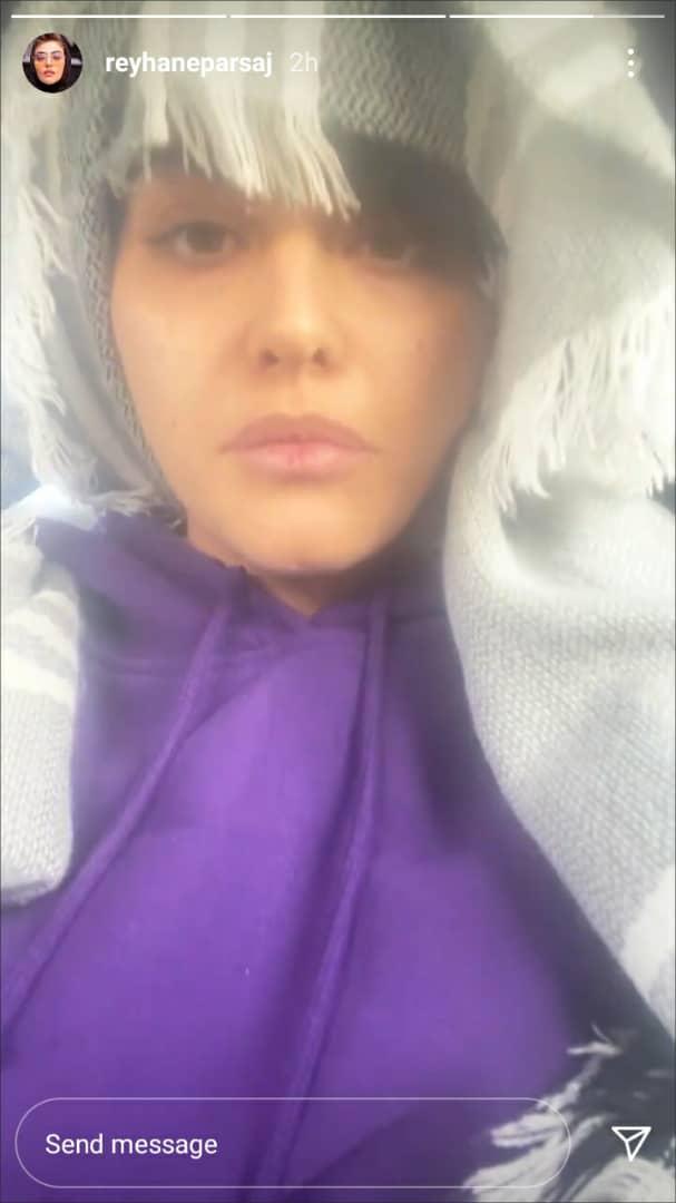 چهره داغون و بدون آرایش ریحانه پارسا در مهاجرت از ایران + عکس